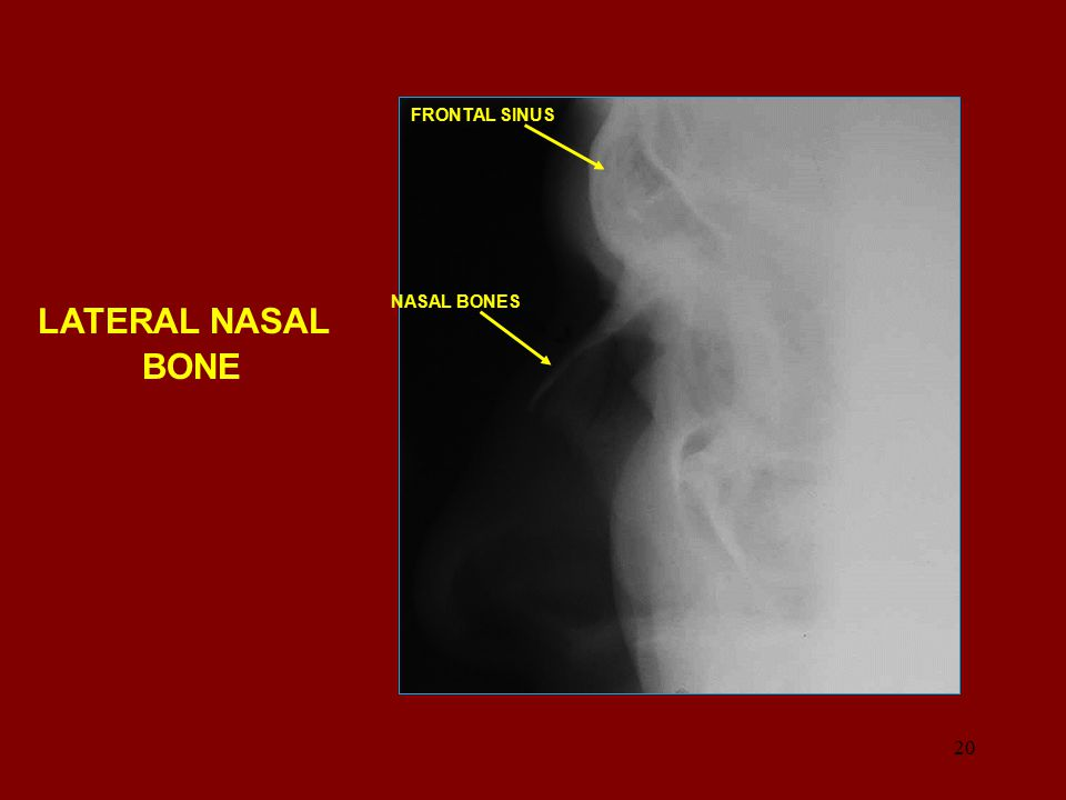 FRONTAL SINUS NASAL BONES LATERAL NASAL BONE
