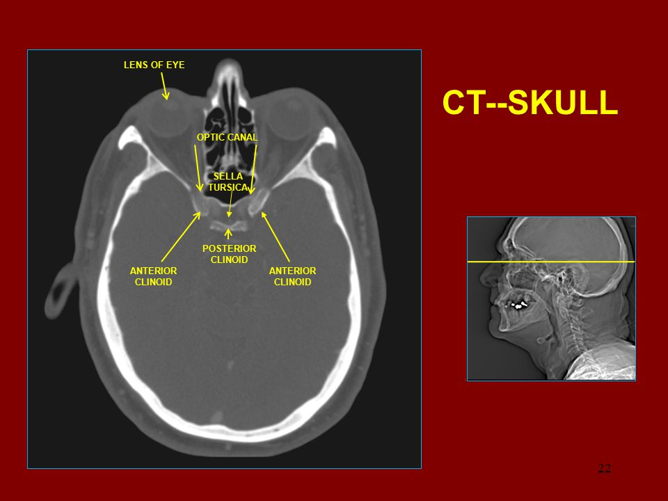 CT--SKULL 22 22 LENS OF EYE OPTIC CANAL SELLA TURSICA POSTERIOR