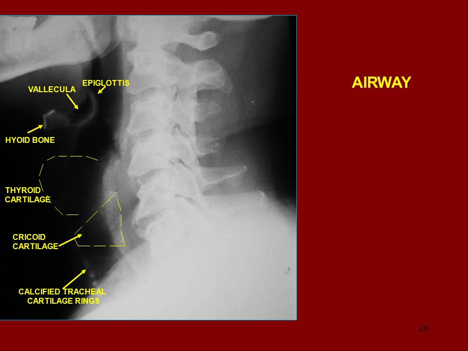 AIRWAY EPIGLOTTIS VALLECULA HYOID BONE THYROID CARTILAGE CRICOID