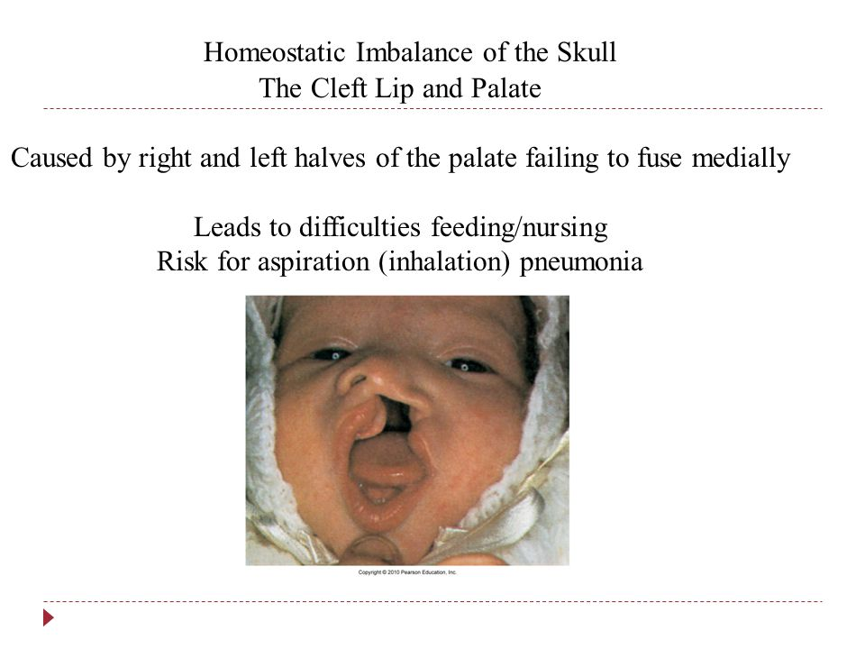 Homeostatic Imbalance of the Skull The Cleft Lip and Palate