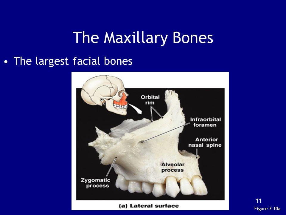 The Maxillary Bones The largest facial bones Figure 7–10a
