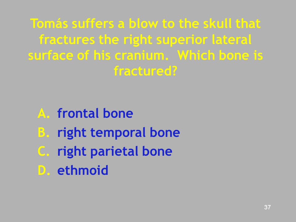 Tomás suffers a blow to the skull that fractures the right superior lateral surface of his cranium. Which bone is fractured