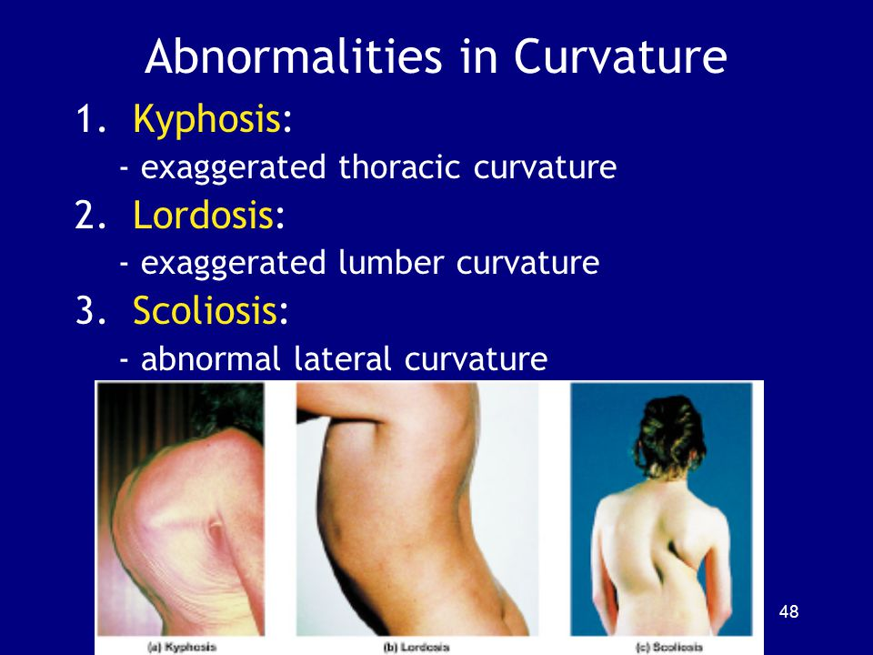 Abnormalities in Curvature