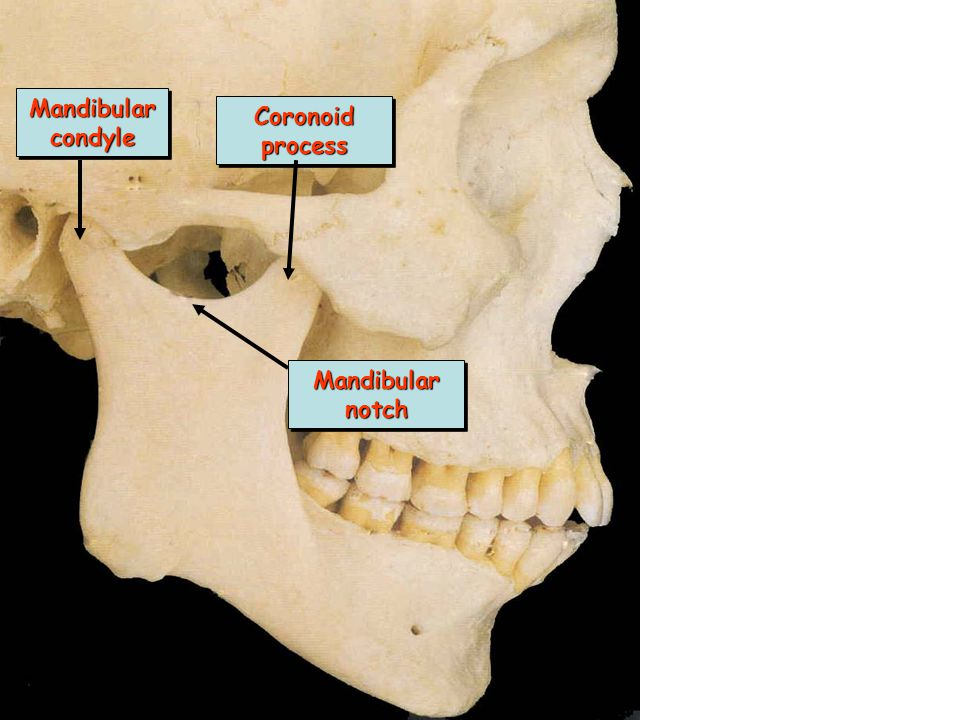 Mandibular condyle Coronoid process Mandibular notch