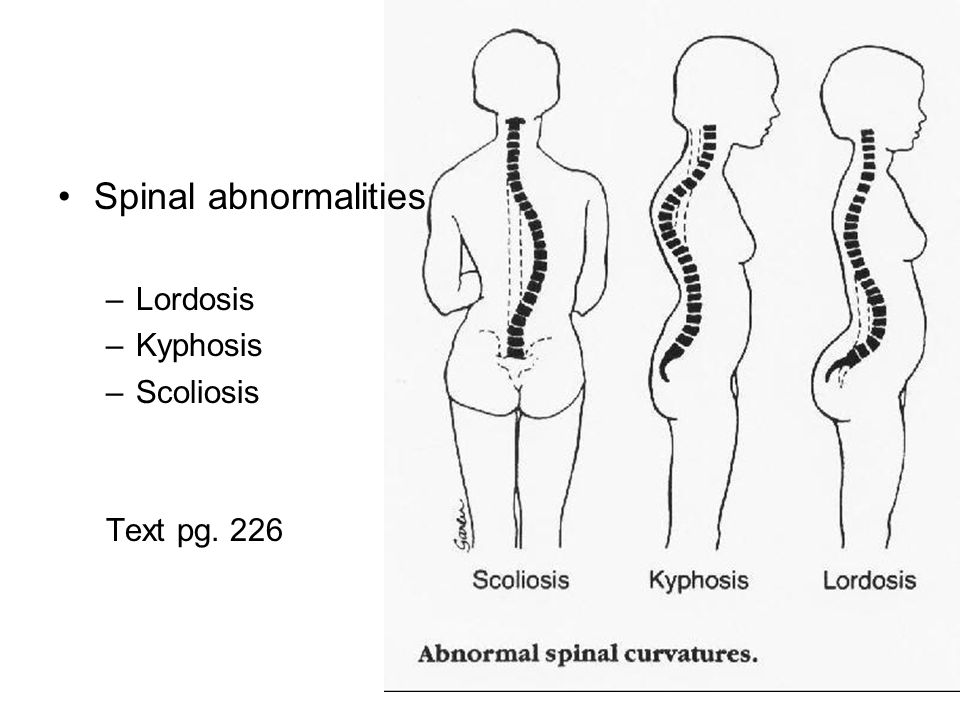 Spinal abnormalities Lordosis Kyphosis Scoliosis Text pg. 226
