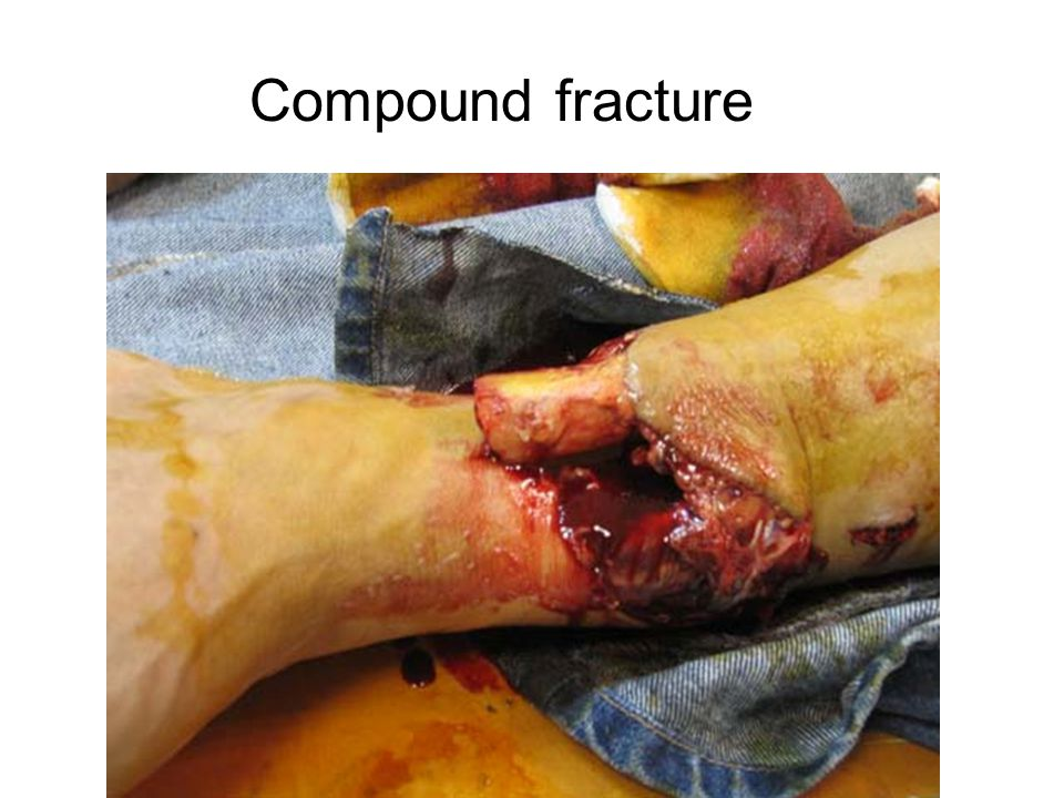 Compound fracture