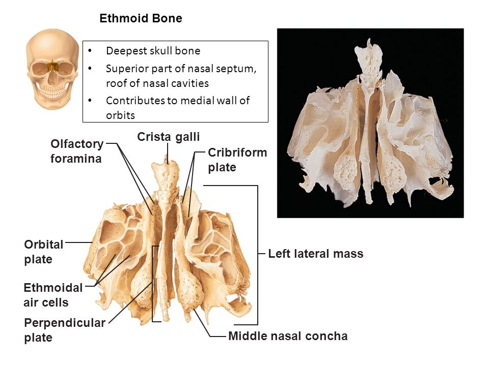 Ethmoid Bone Deepest skull bone. Superior part of nasal septum, roof of nasal cavities. Contributes to medial wall of orbits.