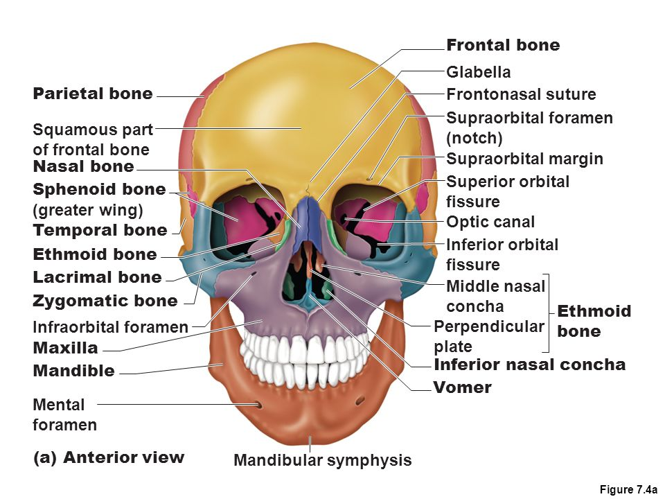 Frontal bone Glabella Parietal bone Frontonasal suture