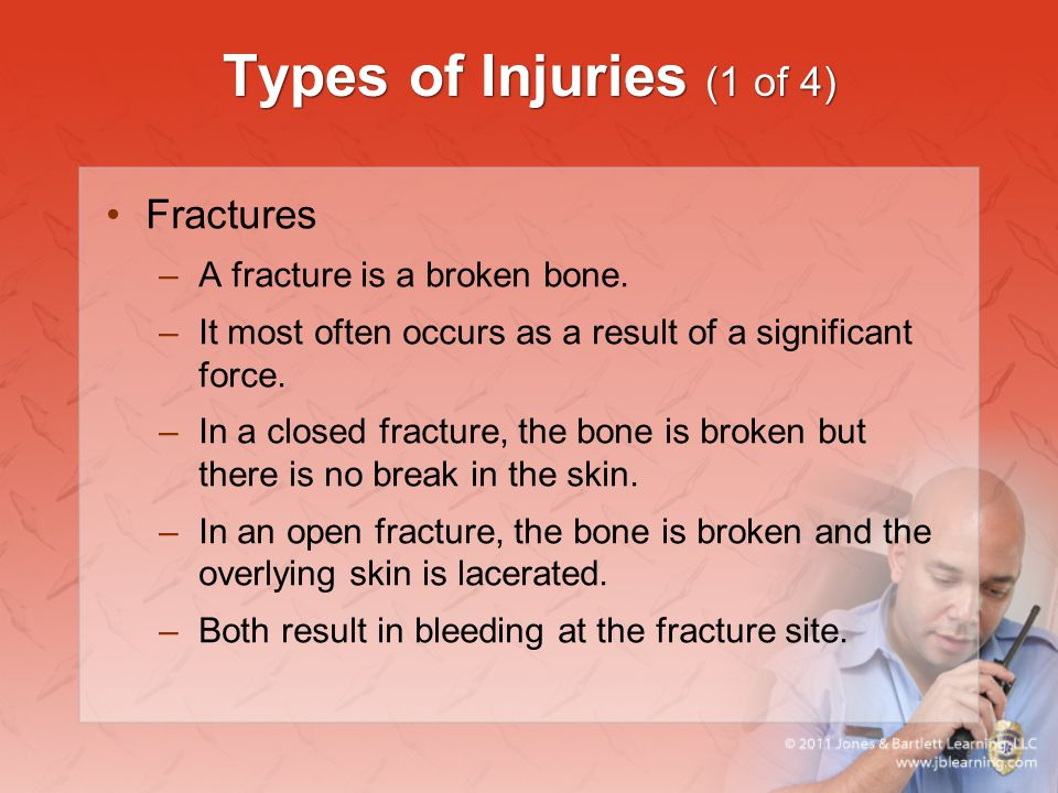 Types of Injuries (1 of 4) Fractures A fracture is a broken bone.