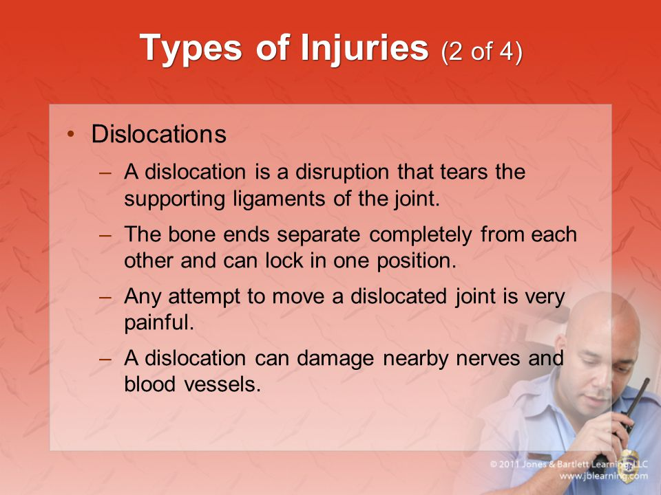 Types of Injuries (2 of 4) Dislocations