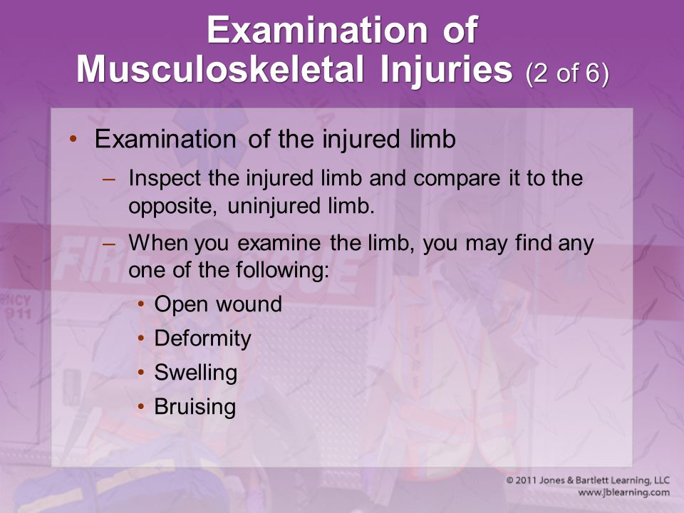 Examination of Musculoskeletal Injuries (2 of 6)