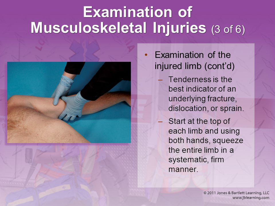 Examination of Musculoskeletal Injuries (3 of 6)