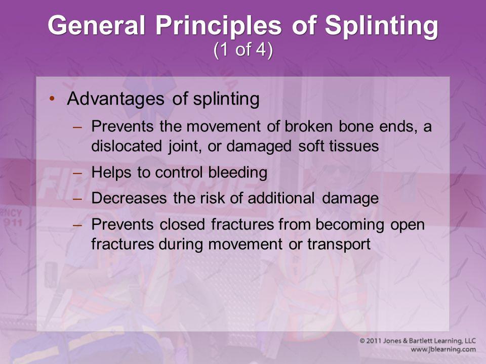 General Principles of Splinting (1 of 4)
