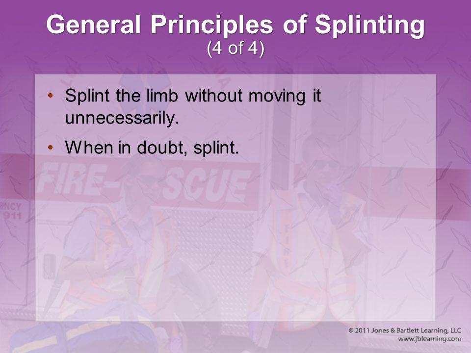 General Principles of Splinting (4 of 4)