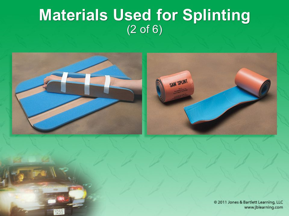 Materials Used for Splinting (2 of 6)