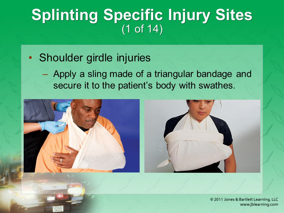 Splinting Specific Injury Sites (1 of 14)
