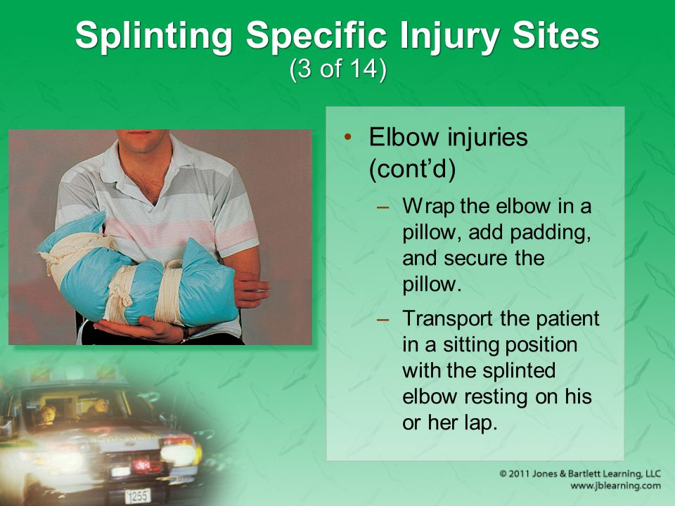 Splinting Specific Injury Sites (3 of 14)