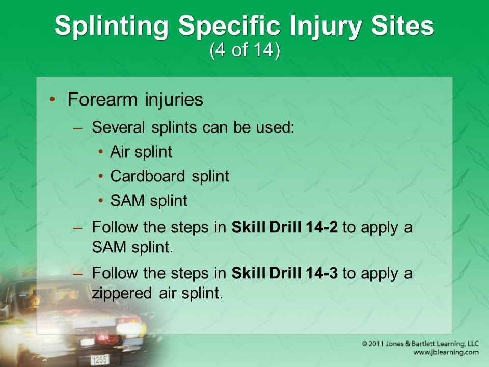 Splinting Specific Injury Sites (4 of 14)