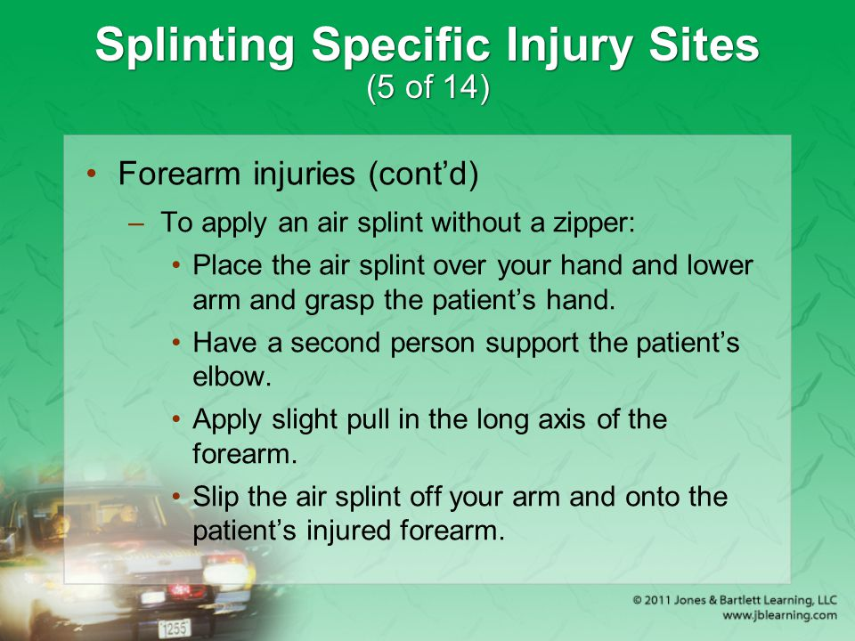 Splinting Specific Injury Sites (5 of 14)