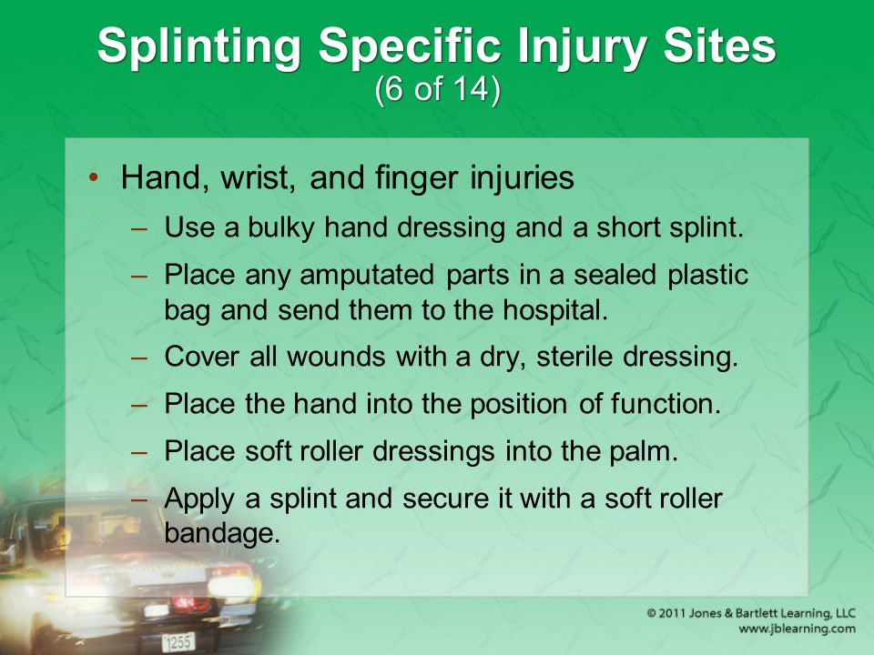 Splinting Specific Injury Sites (6 of 14)