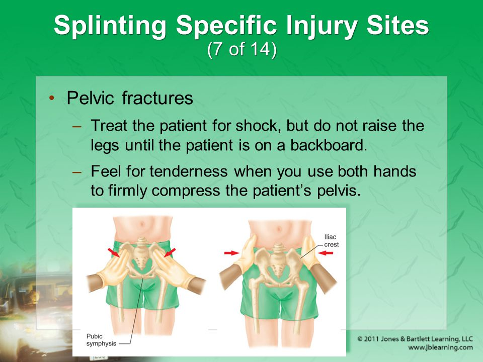 Splinting Specific Injury Sites (7 of 14)