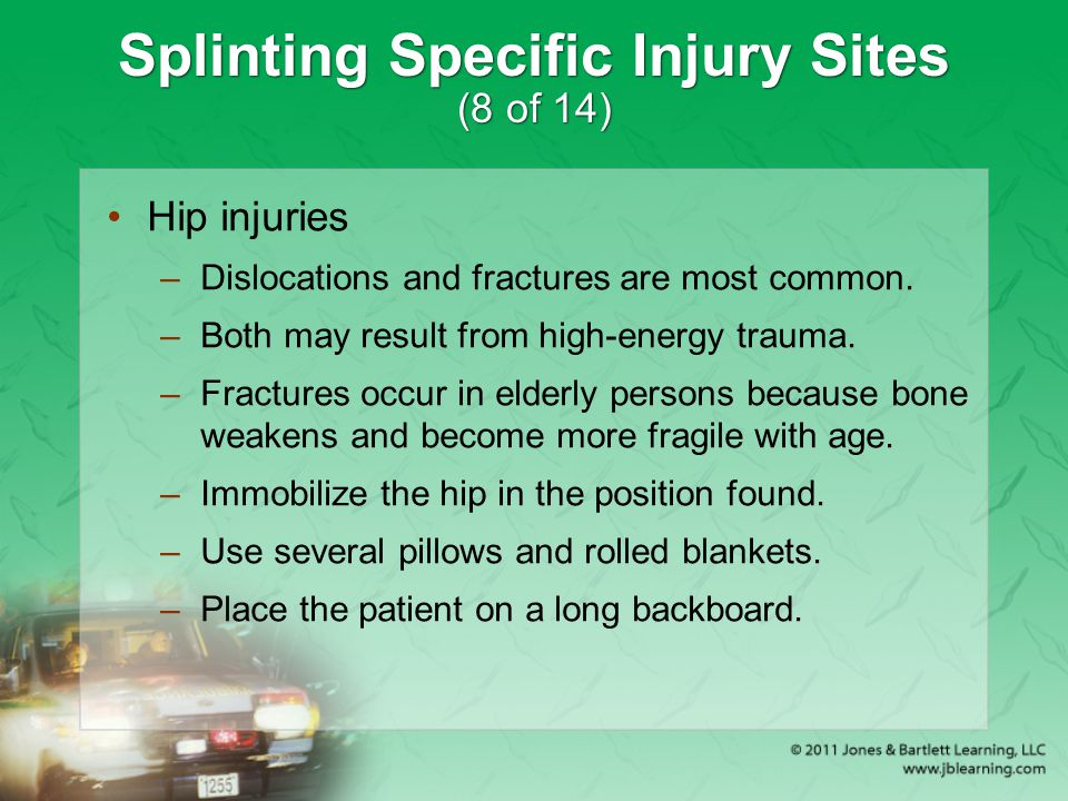 Splinting Specific Injury Sites (8 of 14)