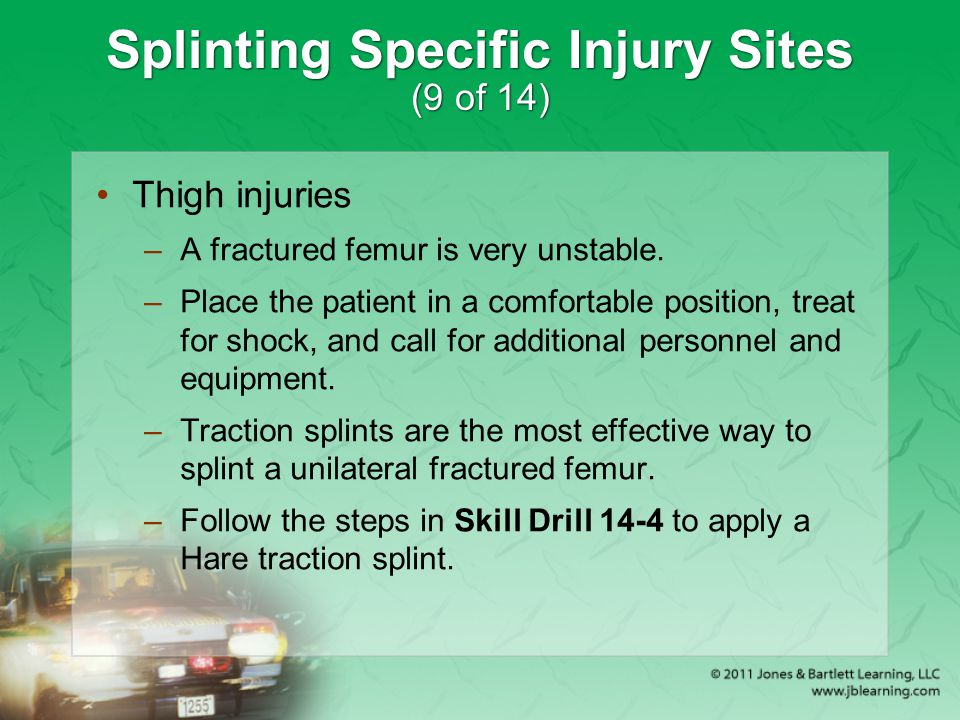 Splinting Specific Injury Sites (9 of 14)