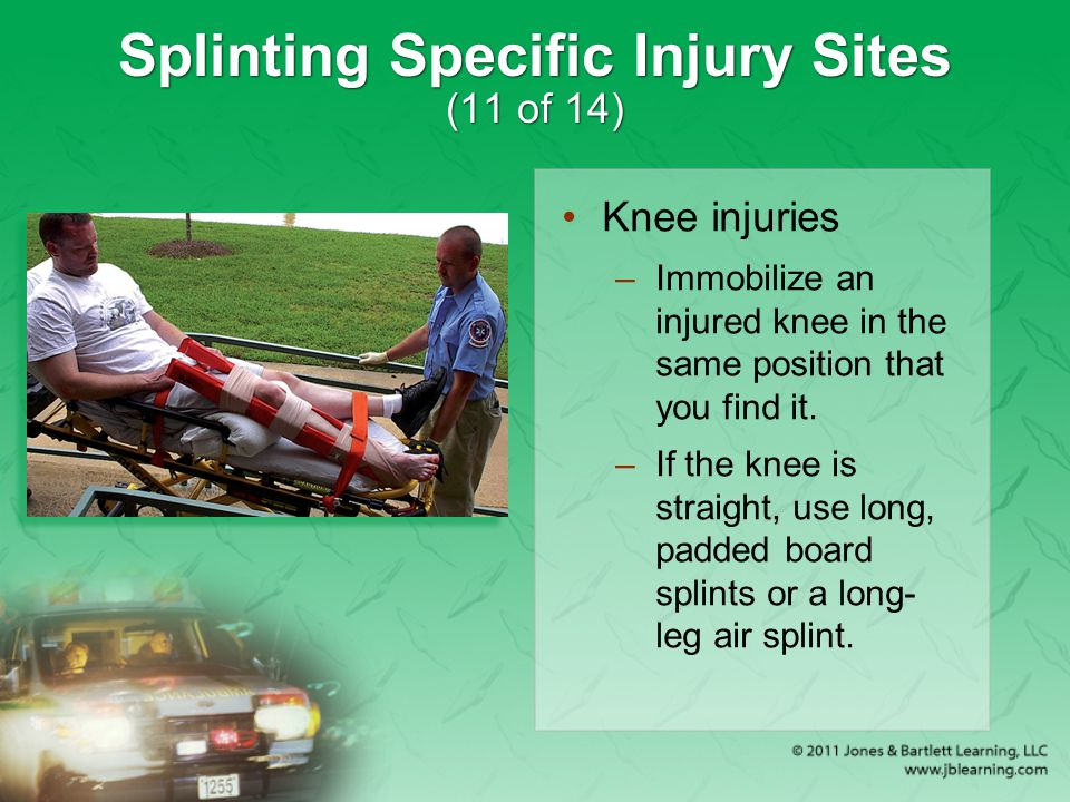 Splinting Specific Injury Sites (11 of 14)