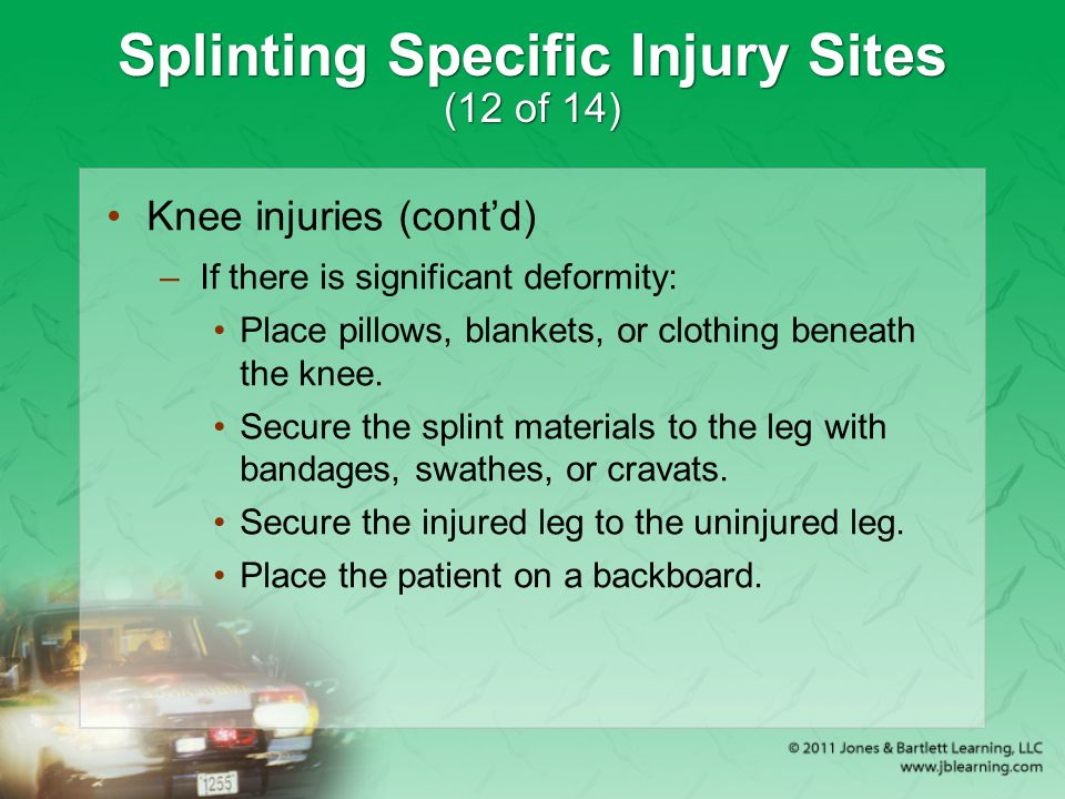 Splinting Specific Injury Sites (12 of 14)