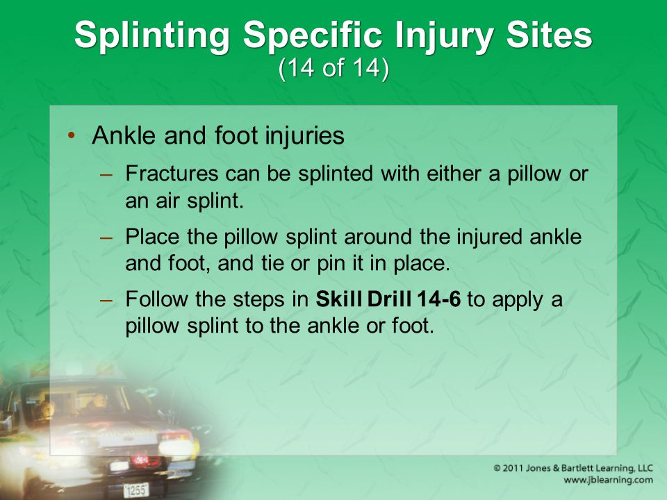 Splinting Specific Injury Sites (14 of 14)
