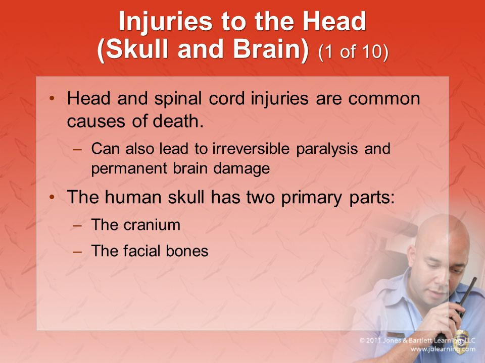 Injuries to the Head (Skull and Brain) (1 of 10)