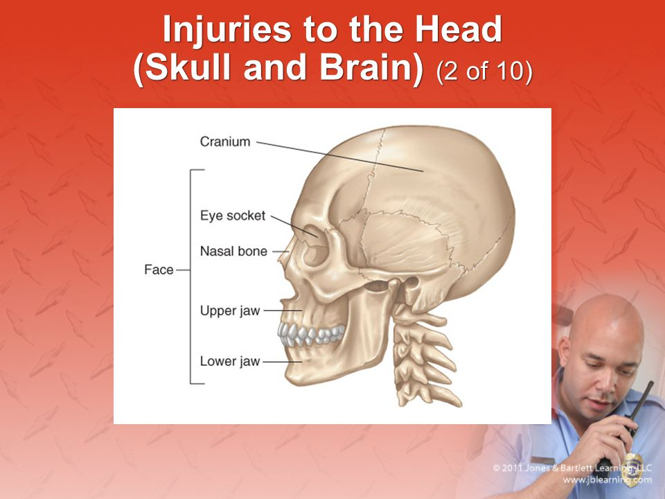 Injuries to the Head (Skull and Brain) (2 of 10)