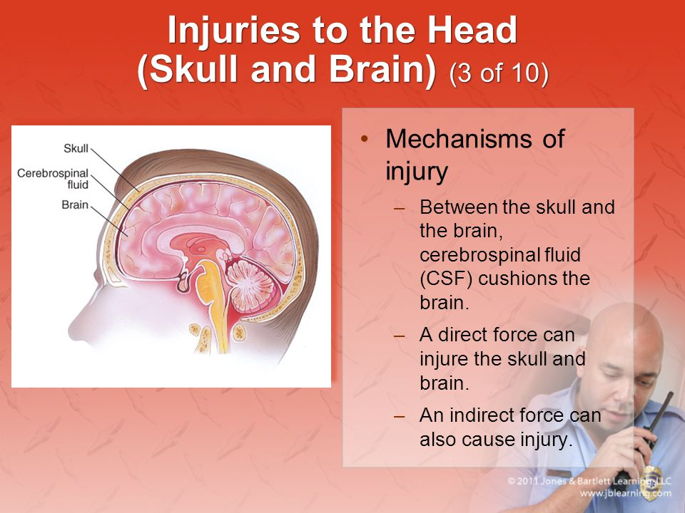 Injuries to the Head (Skull and Brain) (3 of 10)