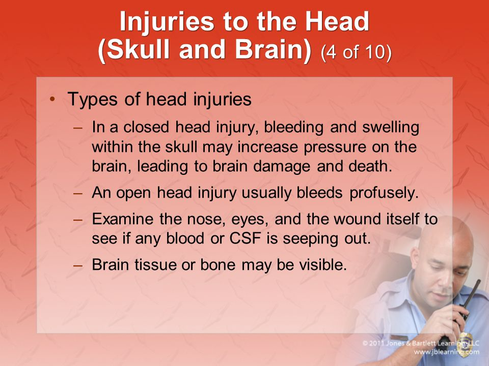 Injuries to the Head (Skull and Brain) (4 of 10)