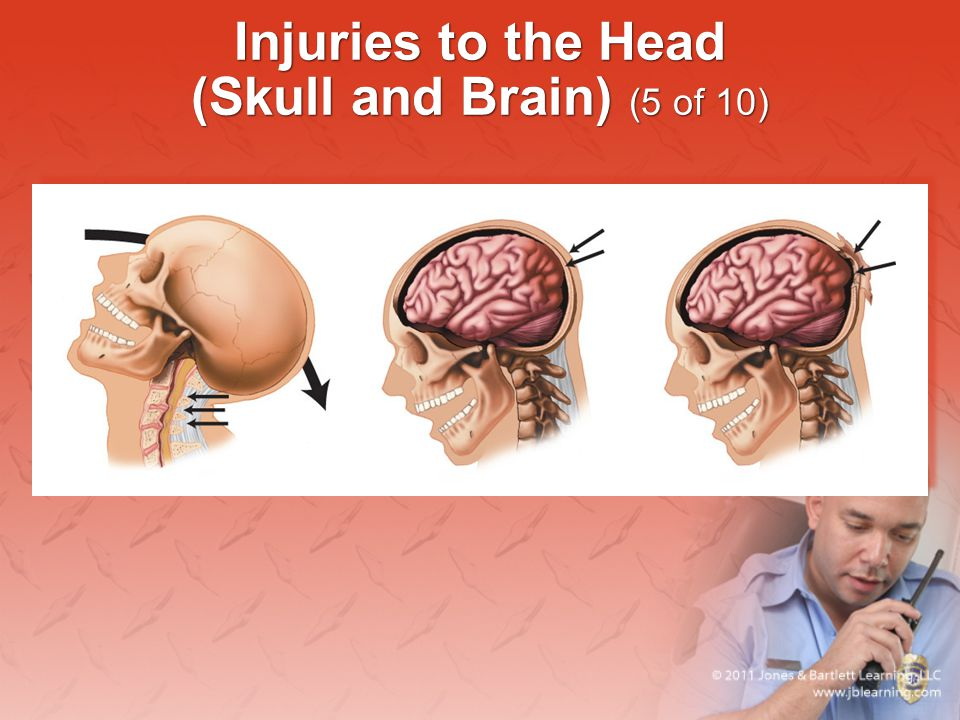 Injuries to the Head (Skull and Brain) (5 of 10)