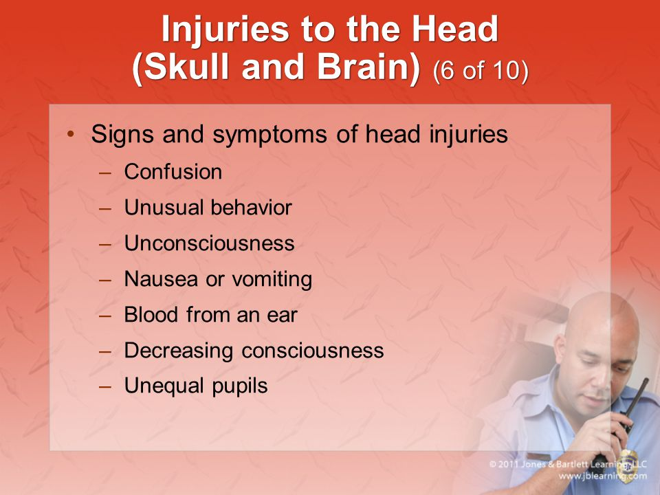 Injuries to the Head (Skull and Brain) (6 of 10)