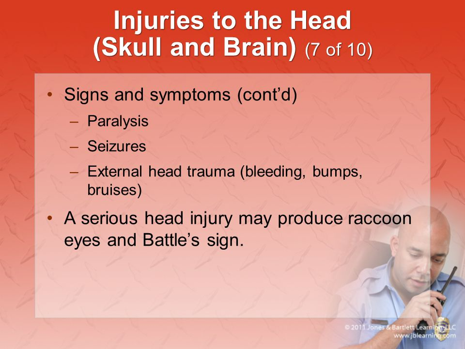 Injuries to the Head (Skull and Brain) (7 of 10)