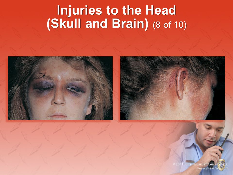 Injuries to the Head (Skull and Brain) (8 of 10)