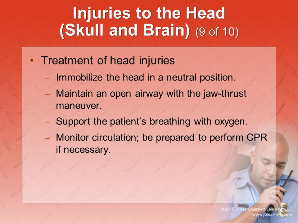 Injuries to the Head (Skull and Brain) (9 of 10)