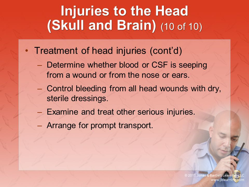 Injuries to the Head (Skull and Brain) (10 of 10)