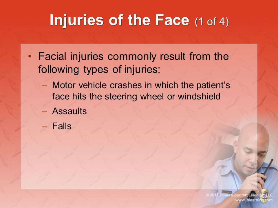 Injuries of the Face (1 of 4)