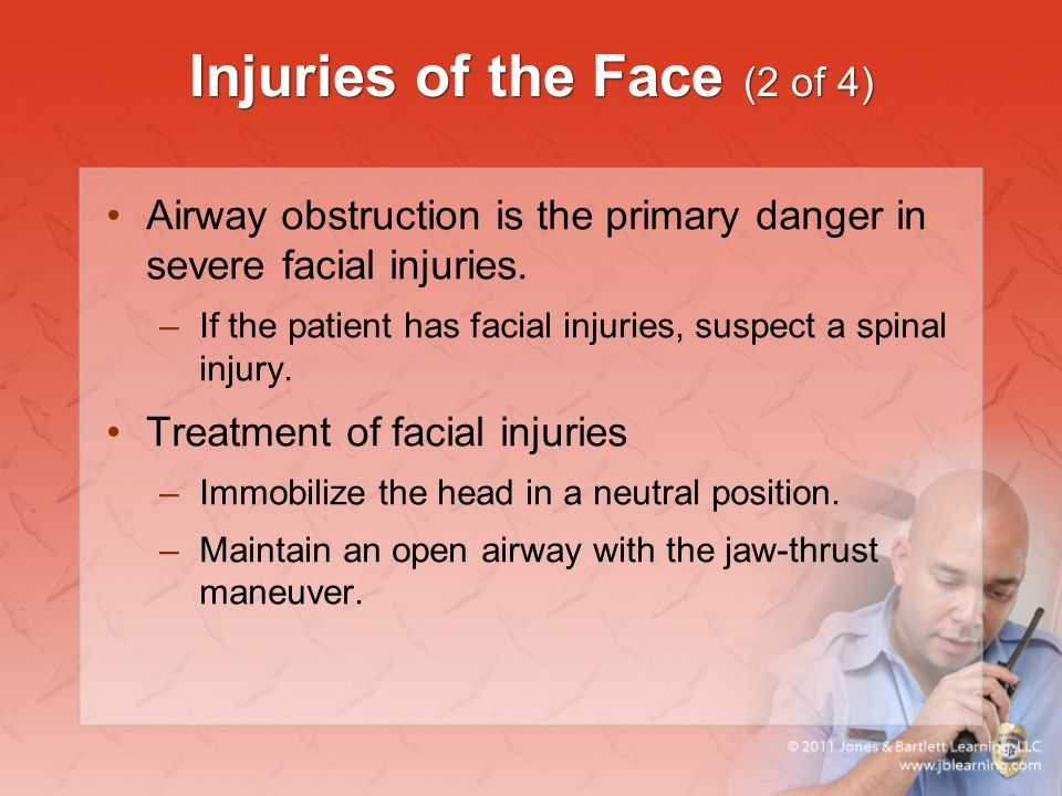 Injuries of the Face (2 of 4)