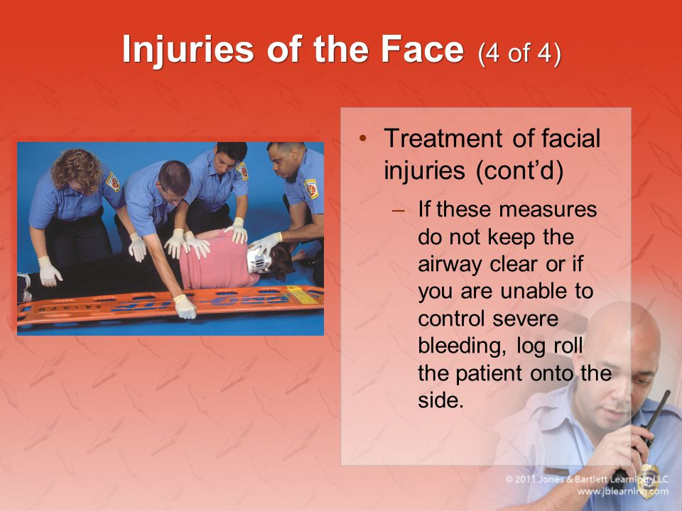 Injuries of the Face (4 of 4)