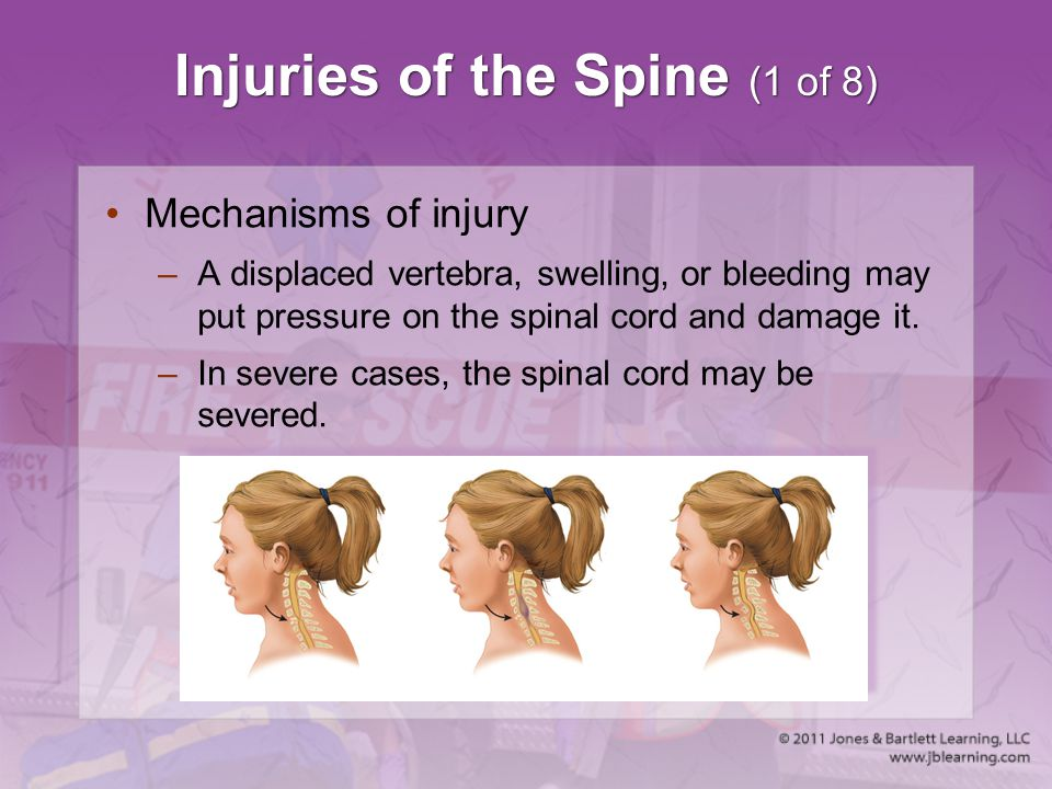 Injuries of the Spine (1 of 8)