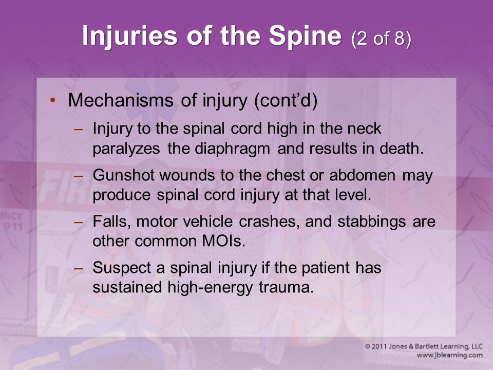 Injuries of the Spine (2 of 8)