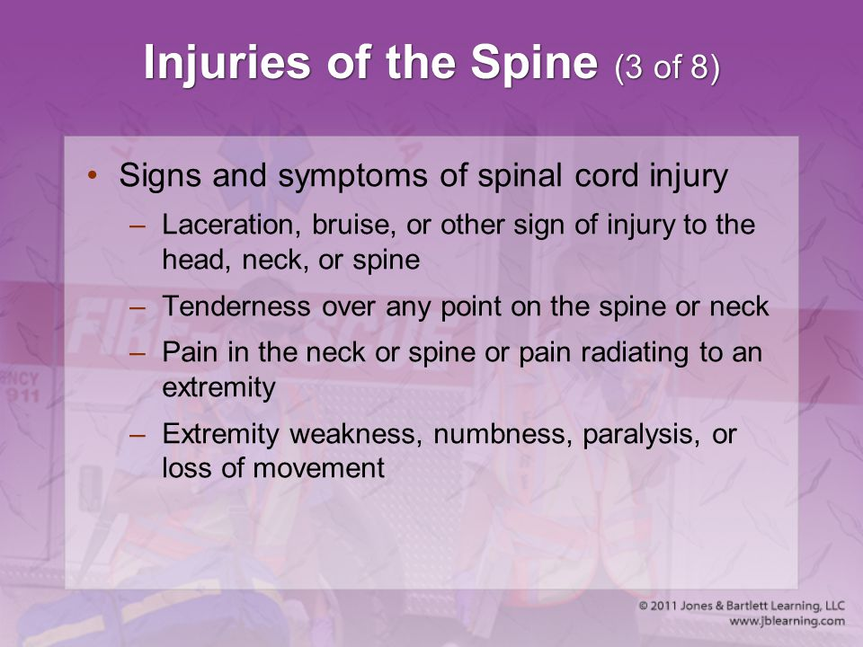 Injuries of the Spine (3 of 8)