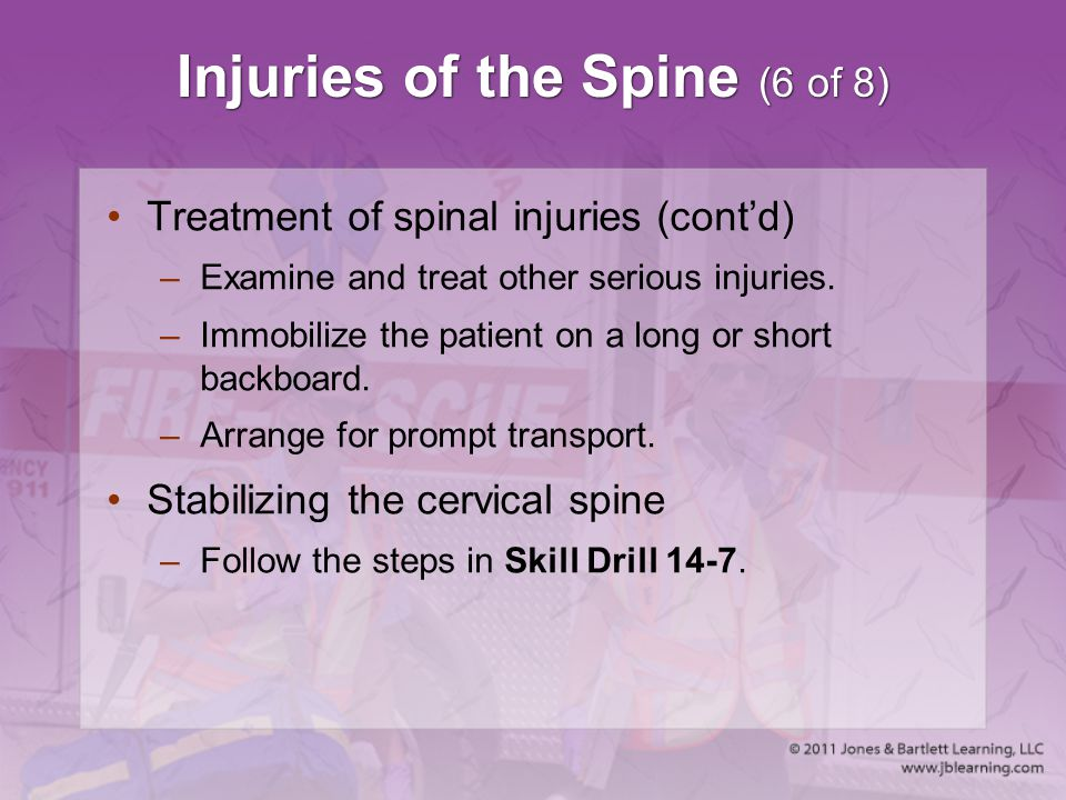 Injuries of the Spine (6 of 8)