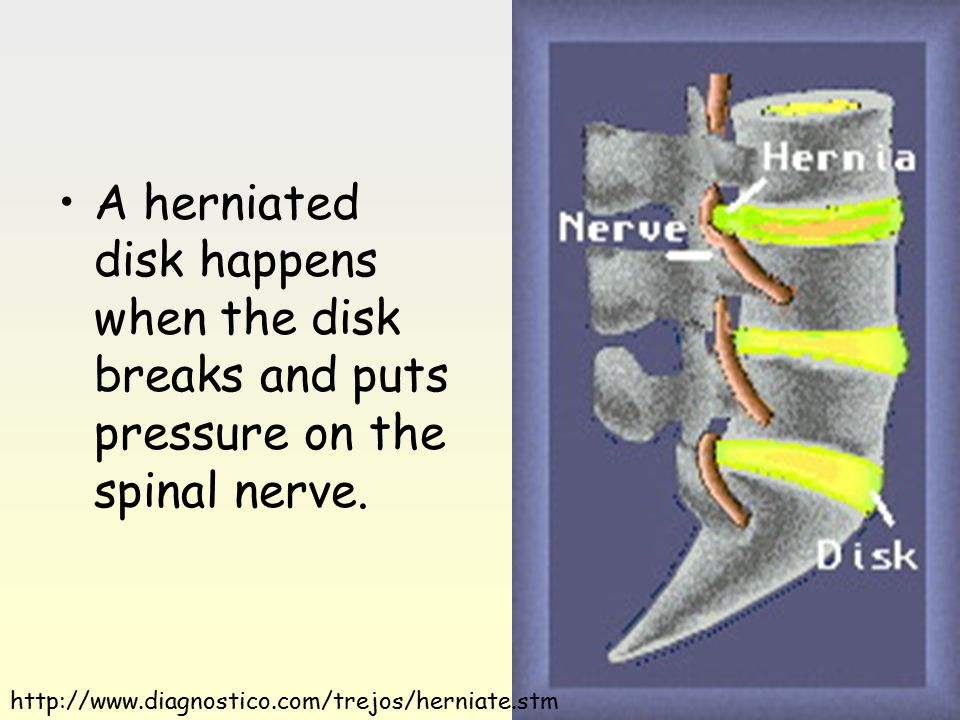 A herniated disk happens when the disk breaks and puts pressure on the spinal nerve.