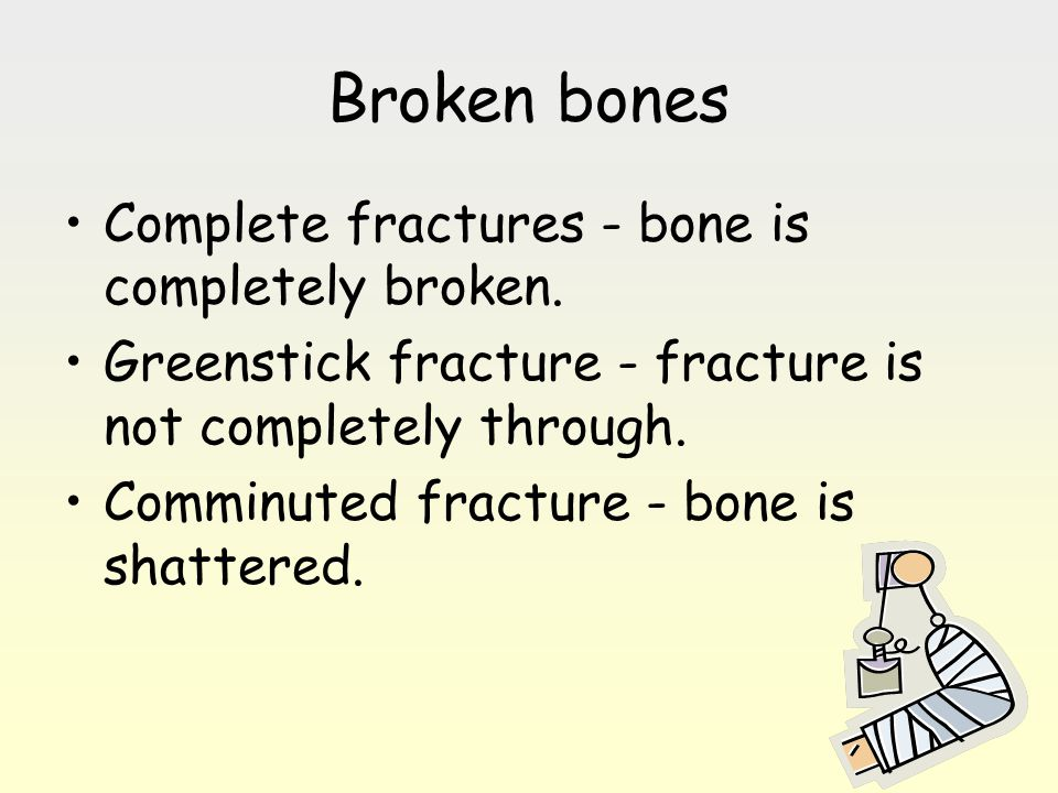 Broken bones Complete fractures - bone is completely broken.