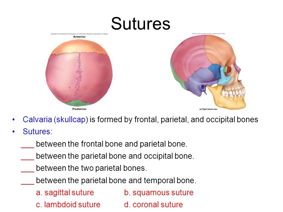 Sutures Calvaria (skullcap) is formed by frontal, parietal, and occipital bones. Sutures: ___ between the frontal bone and parietal bone.